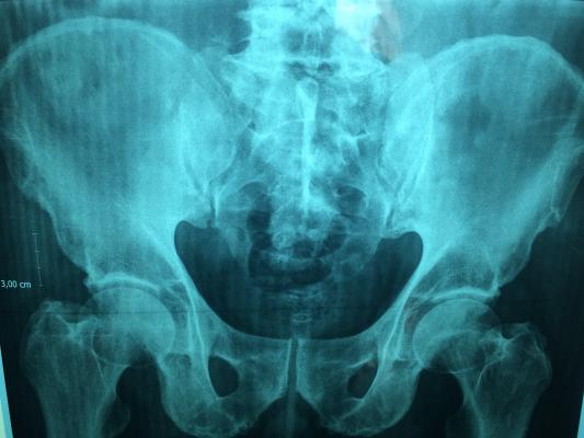 x ray in New Jersey